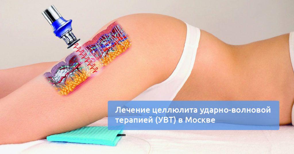 лечение целлюлита аппаратом