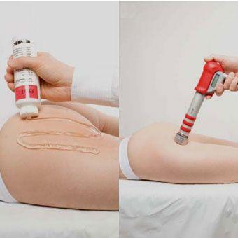 лечение целлюлита увт