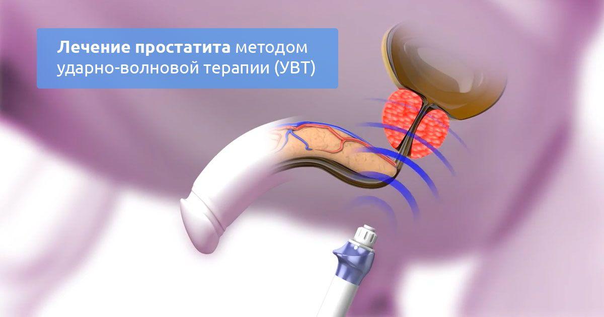 Ударно волновая терапия при простатите — Prostatittut