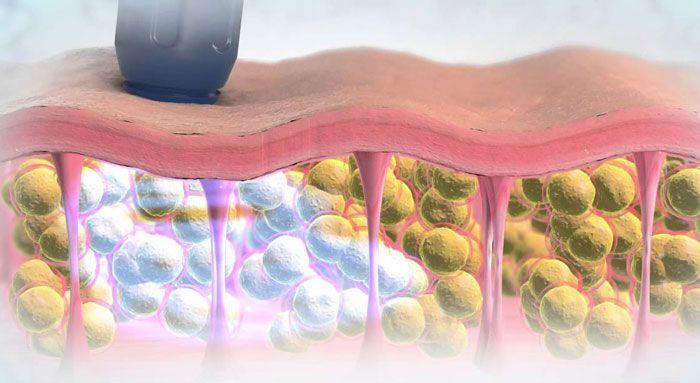 эффективное лечение целлюлита
