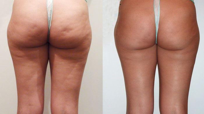 лечение целлюлита методом УВТ фото до и после