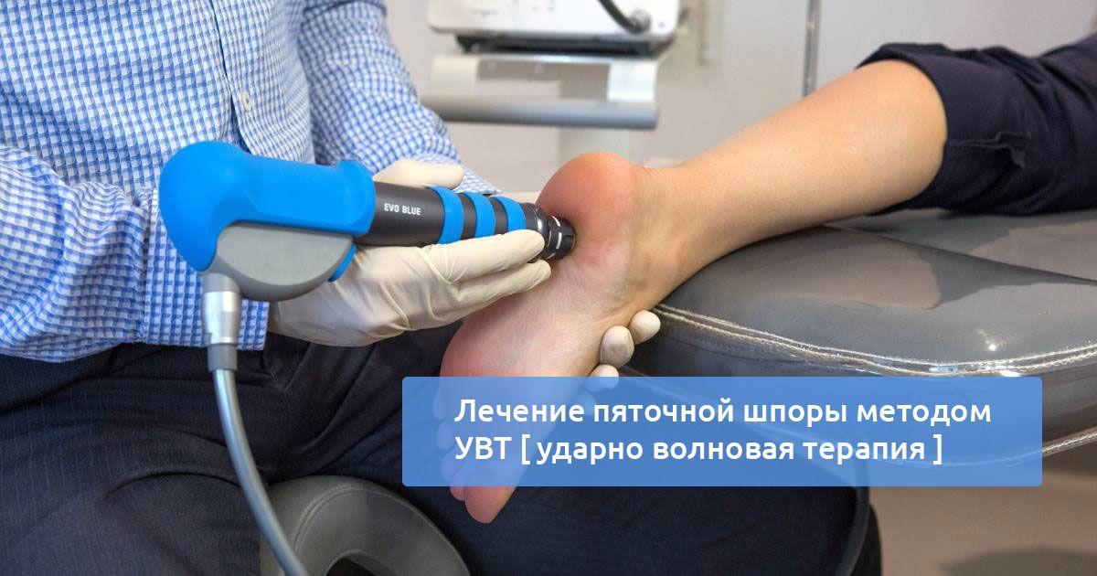 Ударно-волновая терапия пяточной шпоры подготовка и эффективность