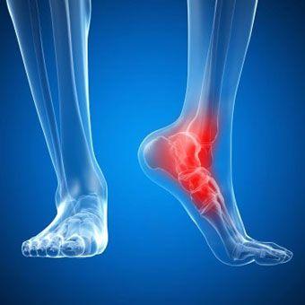 Артрит стопы лечение методом УВТ