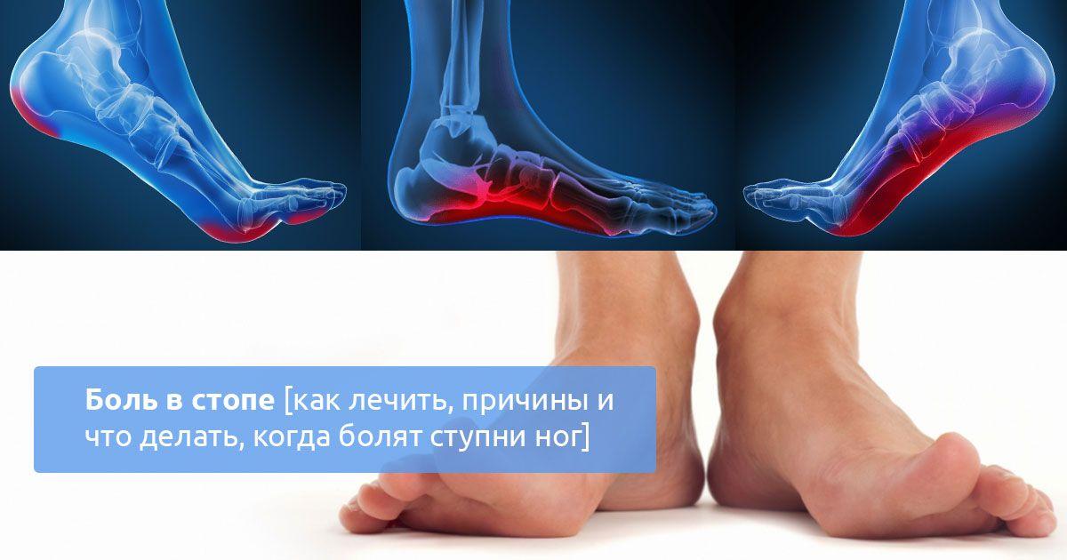 Почему болят ступни ног больно ходить