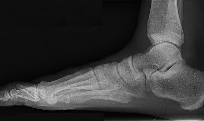 остеопороз стопы лечение