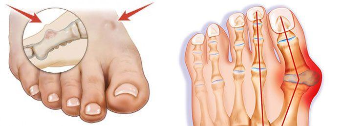 причины шишки на ноге