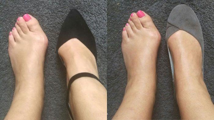 Шишка на ноге: профилактики