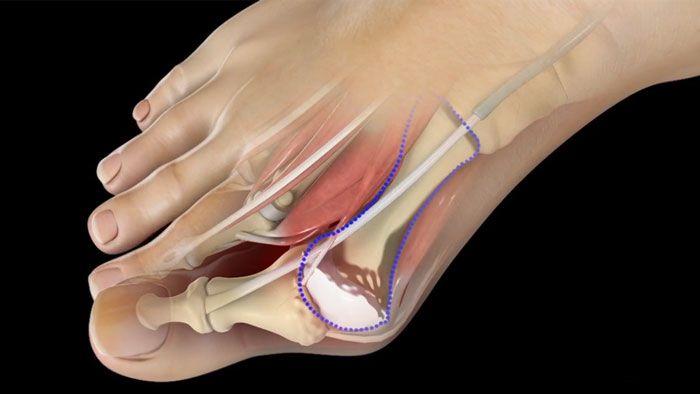 удаление шишек на ноге - опетация