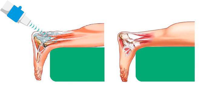 УВТ при шишках на ногах