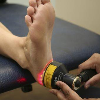 лечение пяточной шпоры лазером