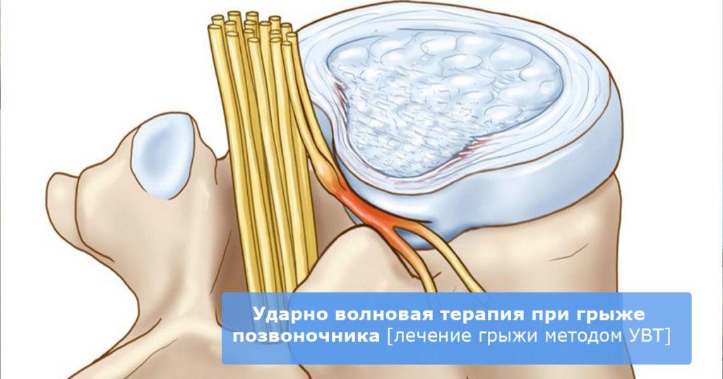 ударно волновая терапия межпозвоночной грыжи