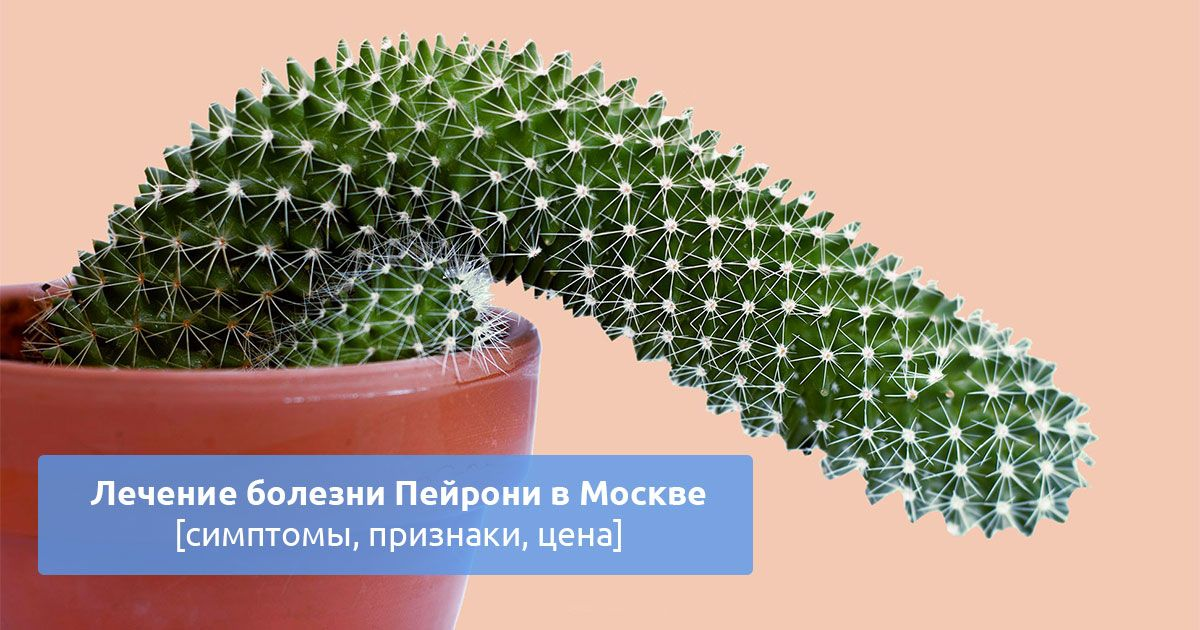 Лечение болезни Пейрони без операции — Androspok