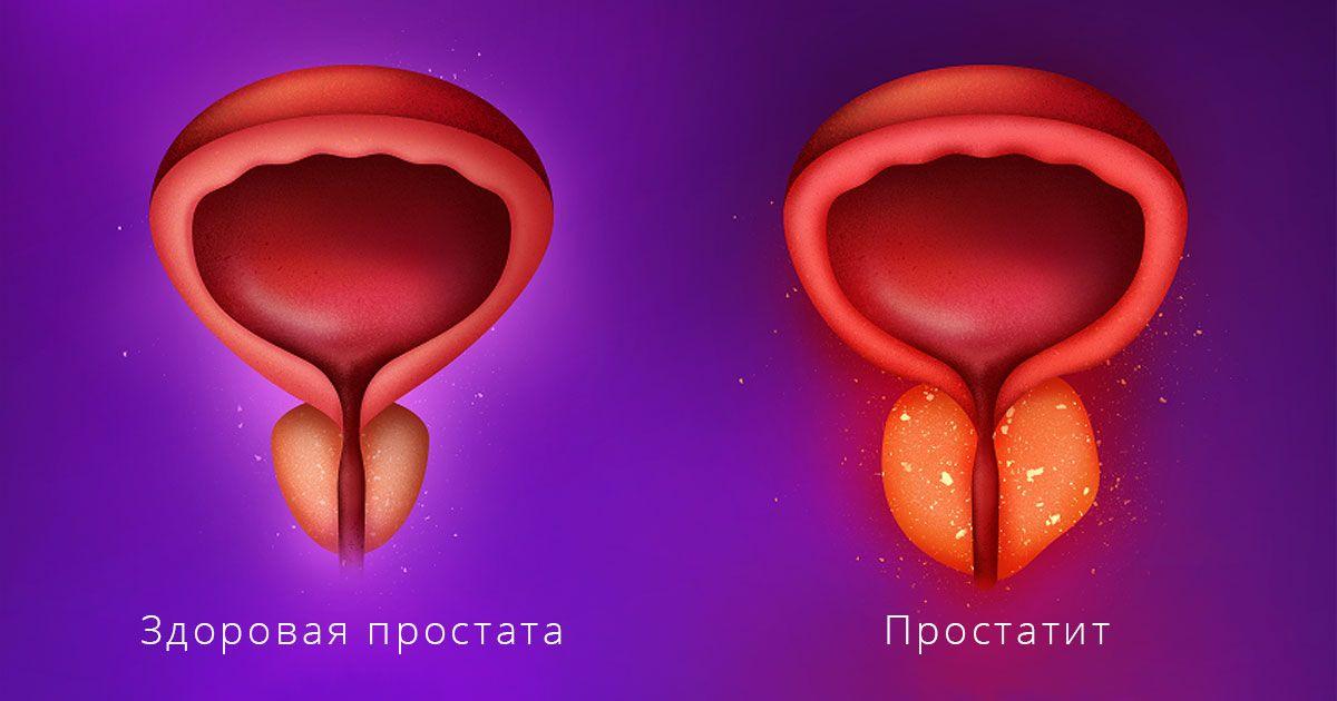 Лечение хронического простатита и методы комплексного воздействия