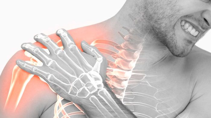 тендинит сухожилия надостной мышцы плечевого сустава