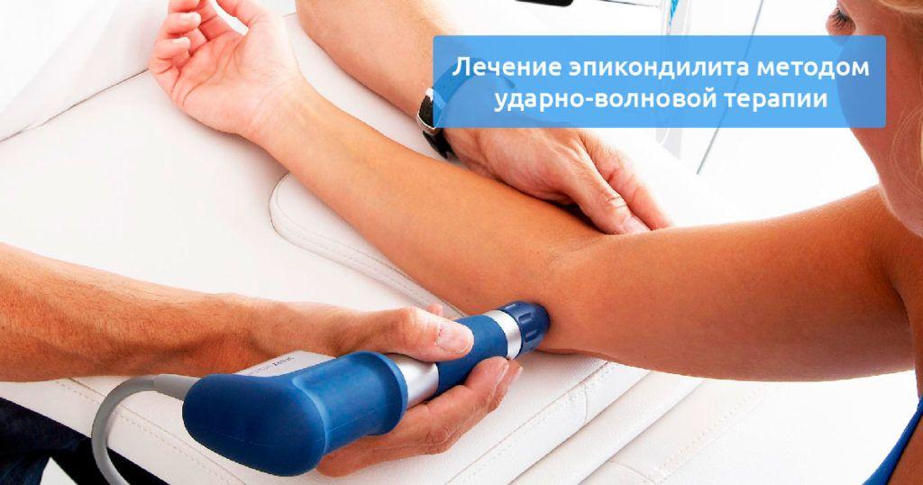 ударно волновая терапия эпикондилит
