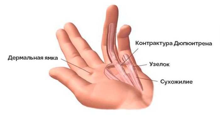 дюпюитрена контрактура описание