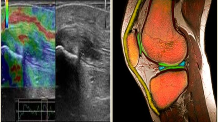 Что показывает УЗИ суставов колена