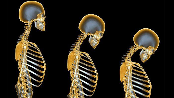 Стадии развития остеопороза позвоночника