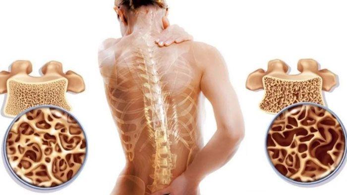 диффузный остеопороз позвоночника лечение