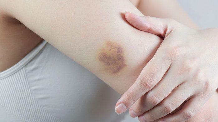 Показания к УЗИ мягких тканей
